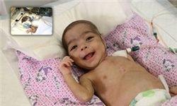 خارج کردن توده از قلب نوزاد 3 ماهه در بابل