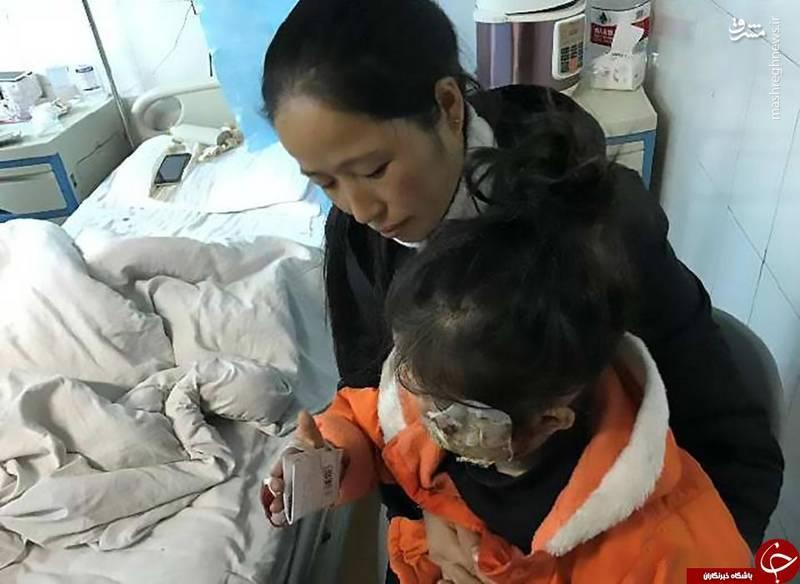 سوختگی شدید دختر خردسال بر اثر انفجار تلفن همراه