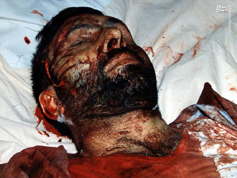 شهید سپهبد علی صیاد شیرازی ساغتی پس از ترور توسط منافقین