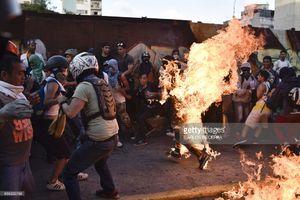 عکس/ آتش زدن یکی از طرفداران مادورو