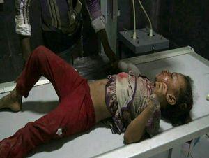 حمله به شهروندان یمنی