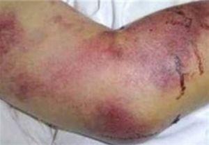 ۶ گروهی که در معرض بیماری کشنده تب کنگو هستند