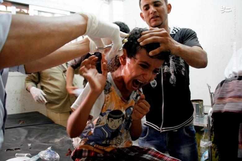 تداوم جنگ یمن در سکوت خبری