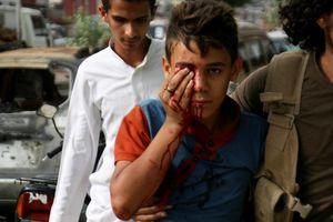 کشته شدن 8 مزدور سعودی در تعز یمن