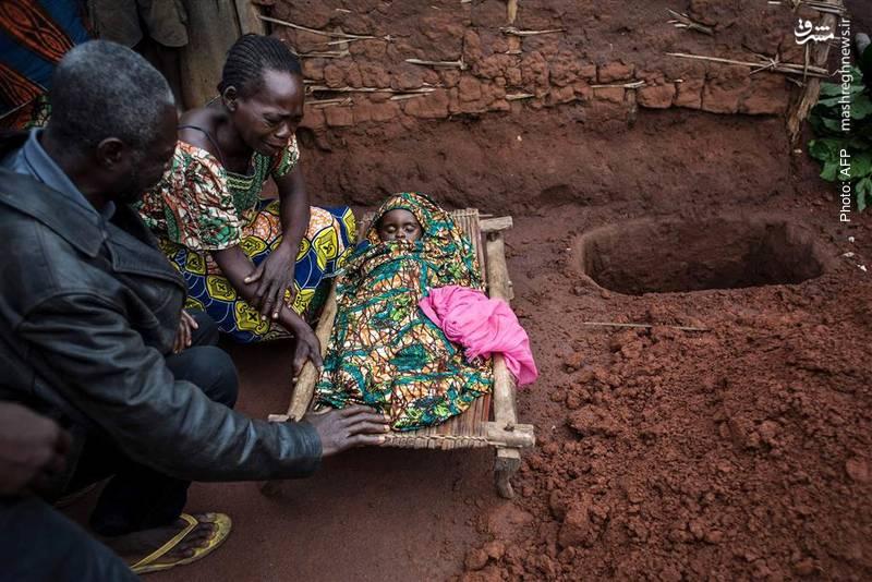 مرگ نوزاد 15 ماهه بر اثر مالاریا در کنگو