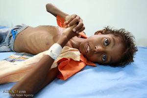 ادعای ائتلاف سعودی: در گزارش صلیب سرخ درباره وبا در یمن اغراق شده است!