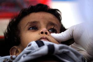 گسترش شیوع وبا در یمن
