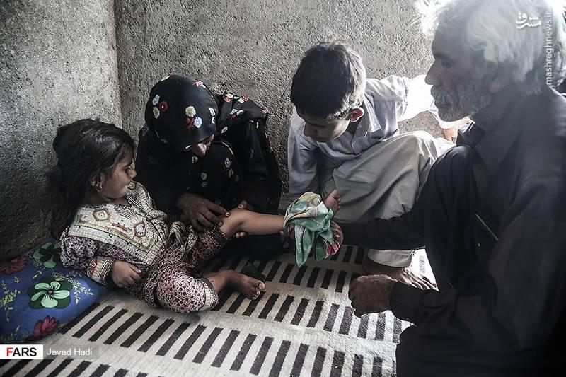 نوعی عقرب در منطقه وجود دارد که درد کمی دارد . بچه ها بخاطر درد کم آن به آن اهمیت نمی دهند. تا زمانی که چیزی نخورند و نیاشامند اتفاقی نمی افتد اما به محض خوردن آب یا مثلا مقداری ماست، شروع به تب کردن می کند و ظرف مدت یک ساعت منجر به فوت می شود.