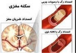 علت ۳۰۰ سکته مغزی روزانه در ایران