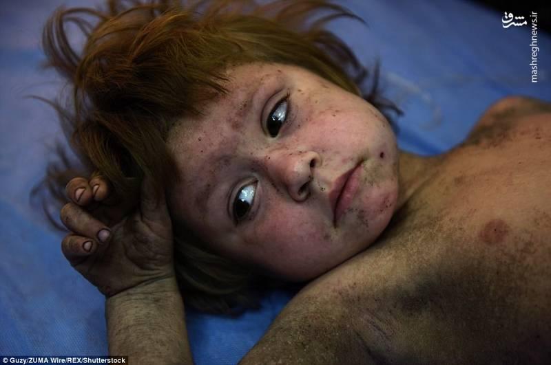 تصاویر/ نجات معجزه آسای دو کودک زیرآوارهای موصل