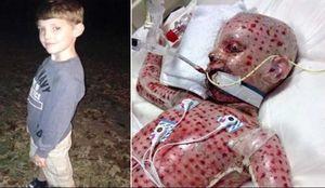 نجات معجزهآسا یک پسربچه از بیماری کشنده