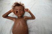 فقر و گرسنگی در یمن