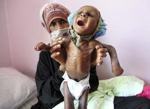 قتل عام هزاران کودک یمنی در سکوت مجامع جهانی/ جنگ خاموش عربستان و آمریکا در یمن/ اینجا هر ۳۵ ثانیه یک کودک «وبا» میگیرد! +عکس(۱۶+)