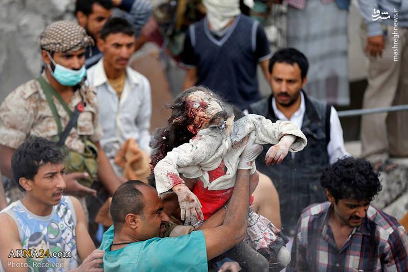 کشتار مردم یمن در حمله جنگندههای سعودی