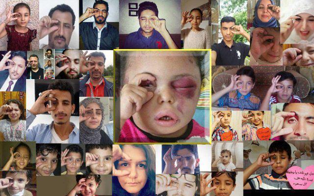 همدردی جهانی با دختر بچه یمنی +عکس
