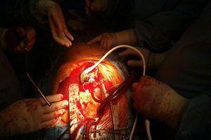 دستگاه ضربان ساز دائمی قلب