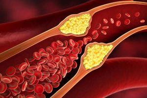 قوی ترین موادغذایی ضد گرفتگی عروق +اینفوگرافی