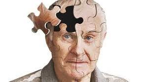 آلزایمر نمایه