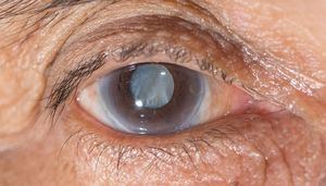 دومین علت نابینایی در جهان