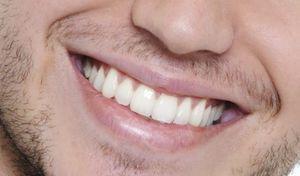 روشهایی برای جلوگیری از تشکیل جرم روی دندان
