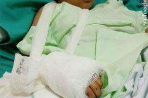 پیوند دست قطع شده کودک زلزله زده