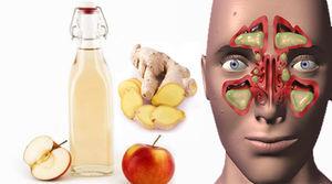 خوراکیهایی برای درمان سینوزیت