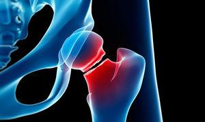 ۷ عامل خطر پوکی استخوان را بشناسید