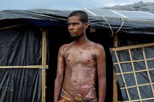 تصاویر دلخراش از شکنجه مسلمانان روهینگیا 13+
