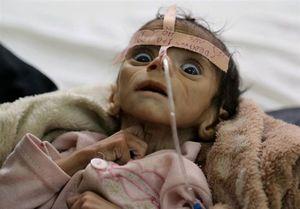 هشدار سازمان بهداشت جهانی نسبت به موج  جدید «وبا» در یمن