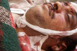 عکس/ عاقبت همنشینی با «عبدالله صالح»