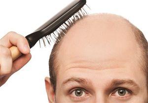 روشی برای جلوگیری از ریزش موی سر