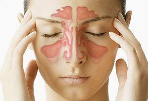 سینوزیت با آنتیبیوتیکهای موضعی درمان نمیشود