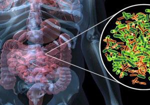 تاثیرات منفی نگهدارندههای غذایی بر باکتریهای روده