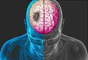 نمایه سکته مغزی
