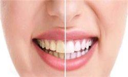 بلایی که پودرهای سفید کننده بر سر دندان میآورند