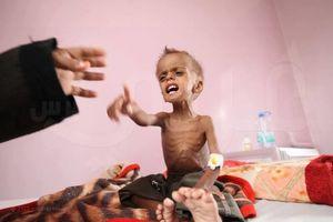 جنایات یمن