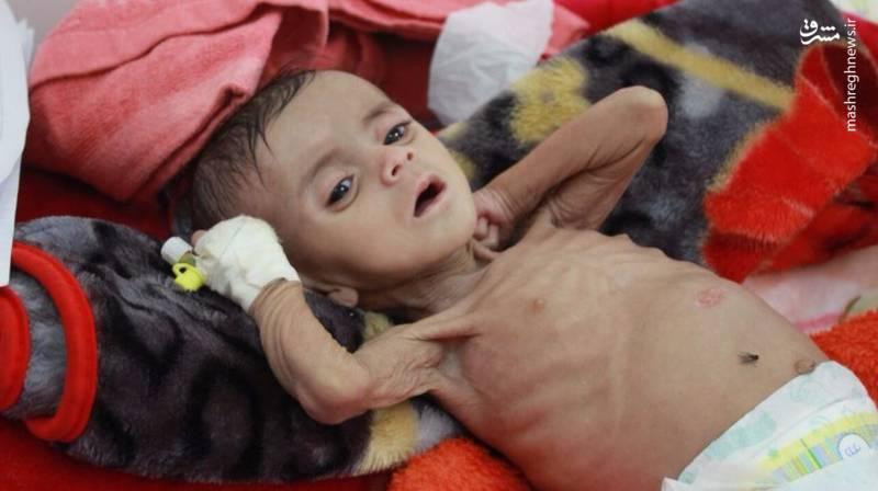 کمپین مخالفت با حملات ائتلاف آل سعود به کشور یمن