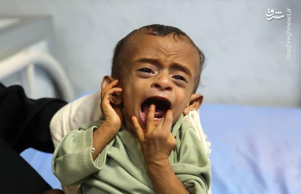 سوءتغذیه کودکان یمنی
