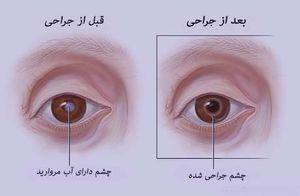 چشم دارای آب مروارید