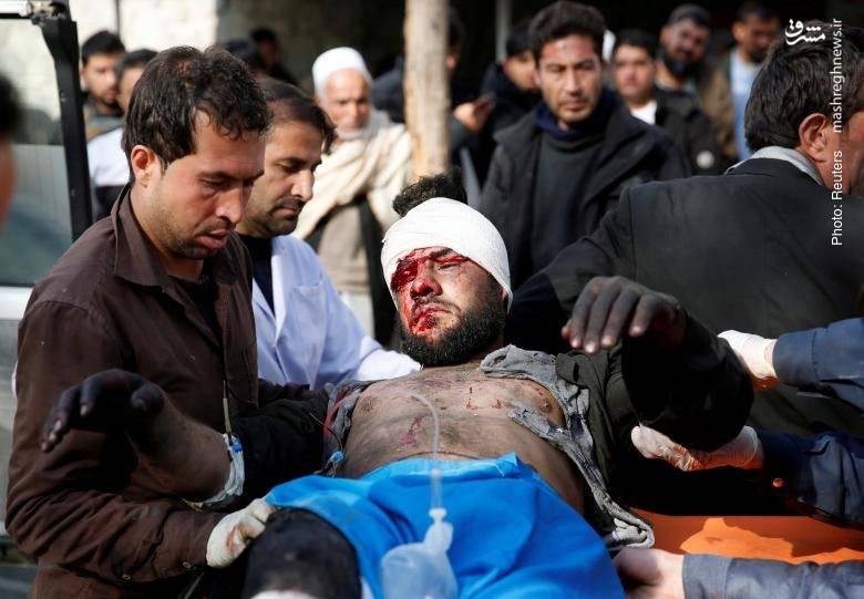 رسیدگی پزشکی پس از انفجاری در کابل