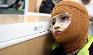 چراغ نفتی بازهم در مدرسهای در سیستان حادثه آفرید +عکس