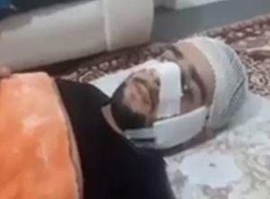 فیلم/ مشاهدات عینی سرباز مجروح ناجا در پاسداران
