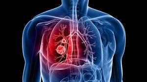 سلامت سرطان ریه