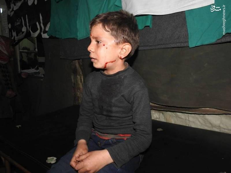 کودک سوری که بر اثر حمله تروریست ها مجروح شد