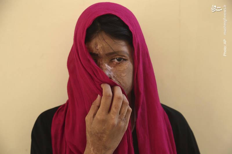سانا ناز، دختری پاکستانی که موردحمله اسیدپاشی قرار گرفته است.