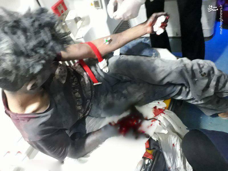 قطع دست نوجوان ۱۶ ساله در انفجار ترقه