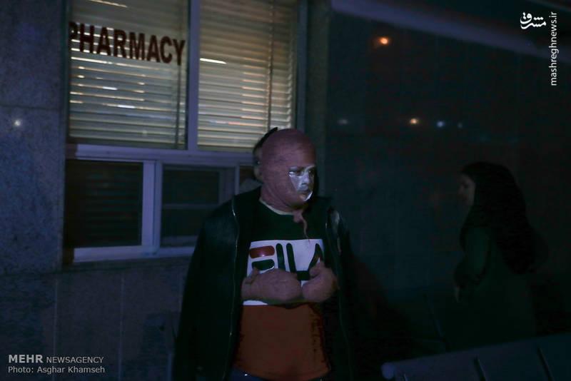 مجروحیت شدید نوجوان تهرانی از ناحیه دست و صورت