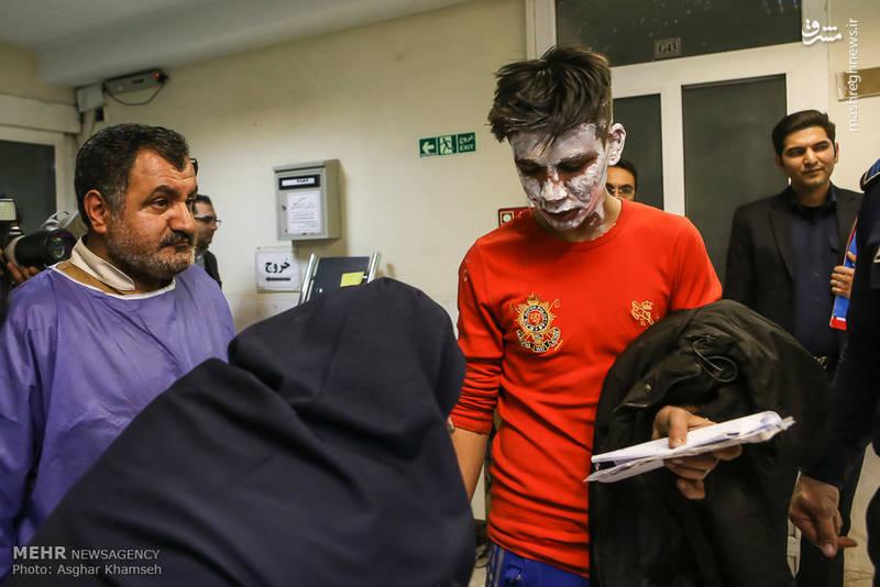 جراحت شدید جوان تهرانی از ناحیه صورت