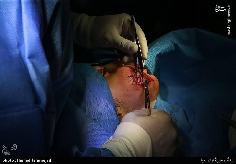 جراحت و سوختگی از ناحیه صورت
