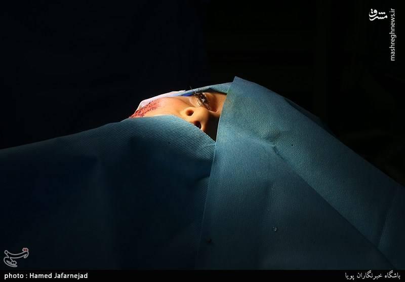جراحت شدید از ناحیه چشم